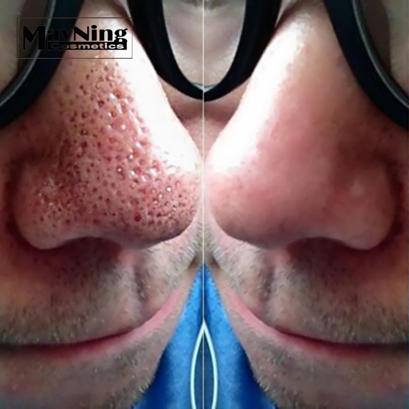 Blackhead Remover Nose Strips Black Mask 50pcs to Remove Acne Nose Black  Heads Deep Cleaning